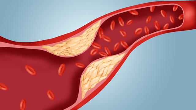 colesterol malo