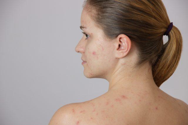 es mala la varicela en adultos