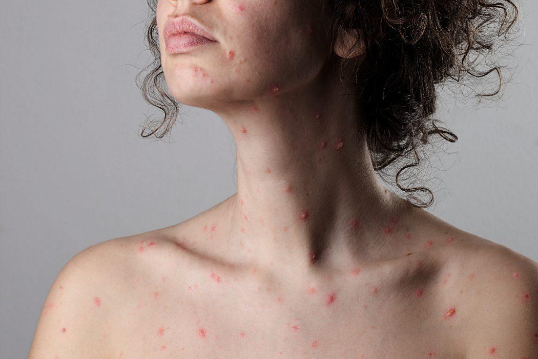 la varicela en adultos